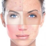 Skin problems go beneath the surface