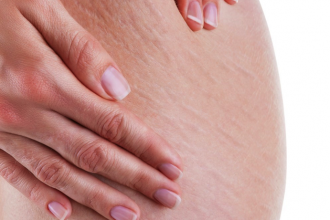 close up of the stretchmarls on a woman's stomach